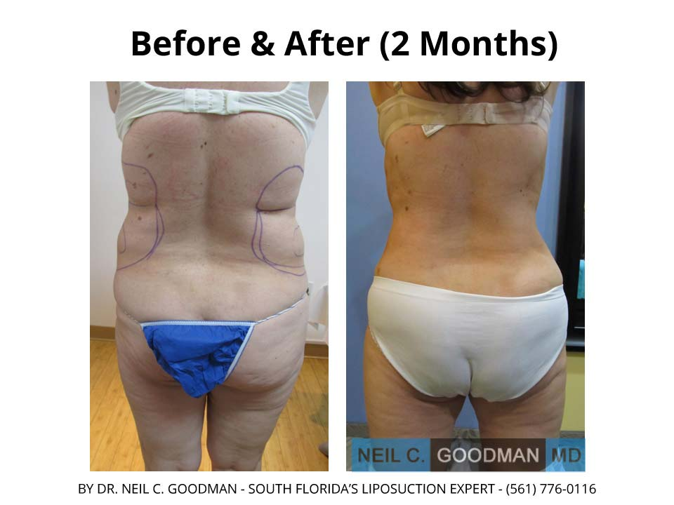 Large Volume Liposuction woman 2 Months