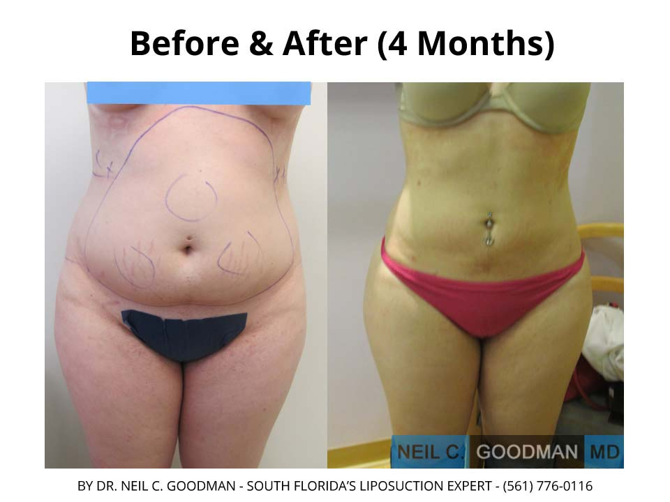 Large Volume Liposuction of woman after 4 month result
