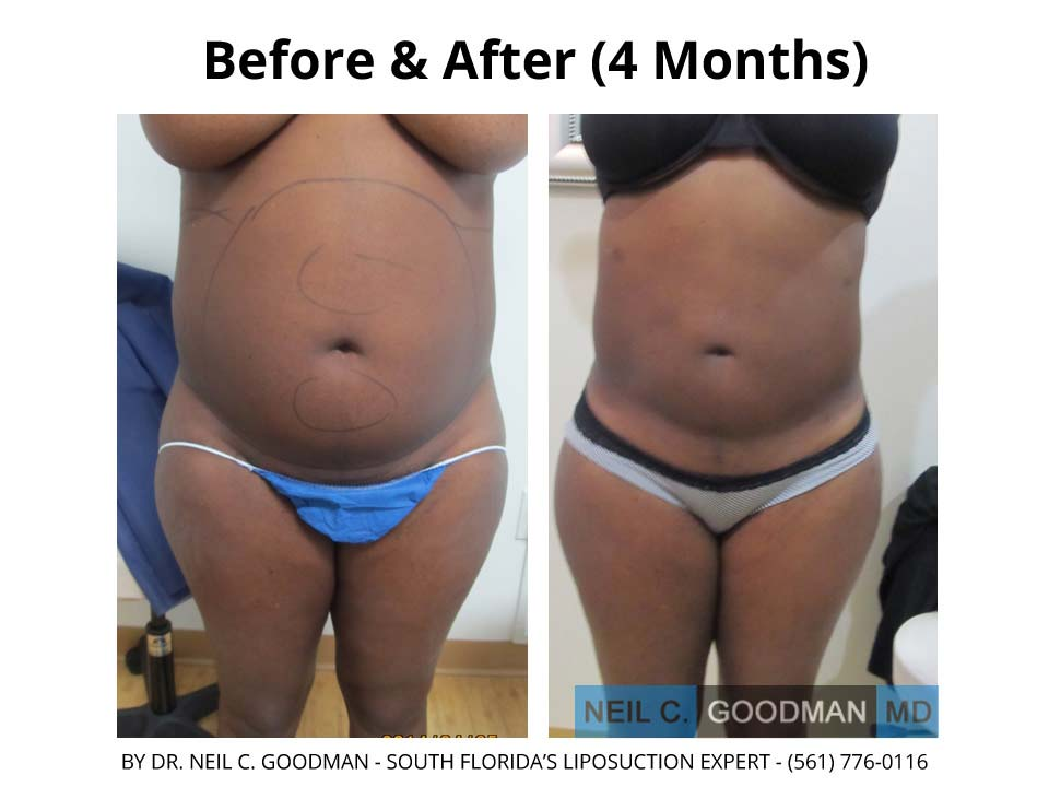 Large Volume Liposuction of woman 4 month result
