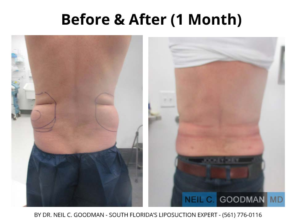Large Volume Liposuction of male 1 Month result