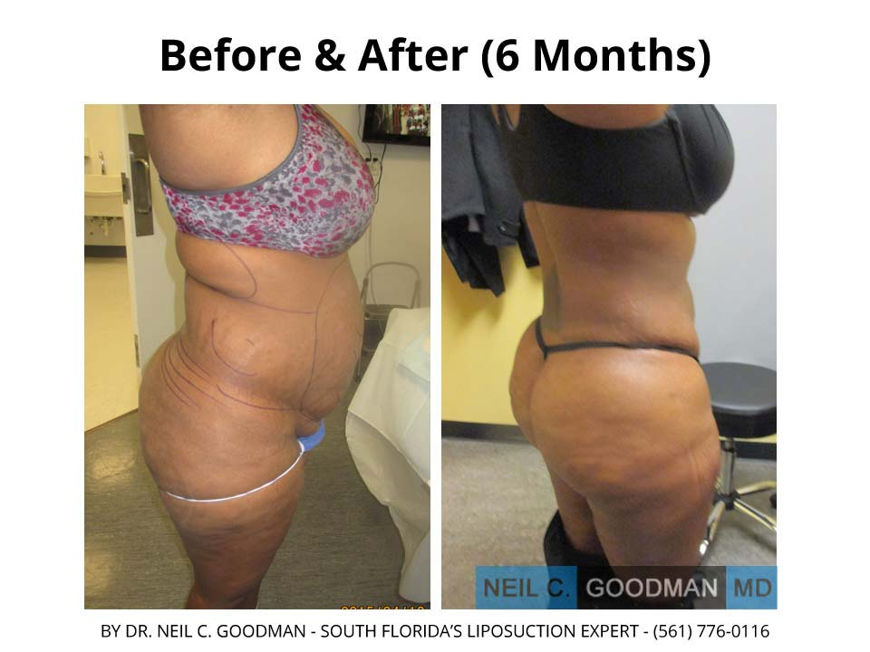 Large Volume Liposuction of woman after 6 month result