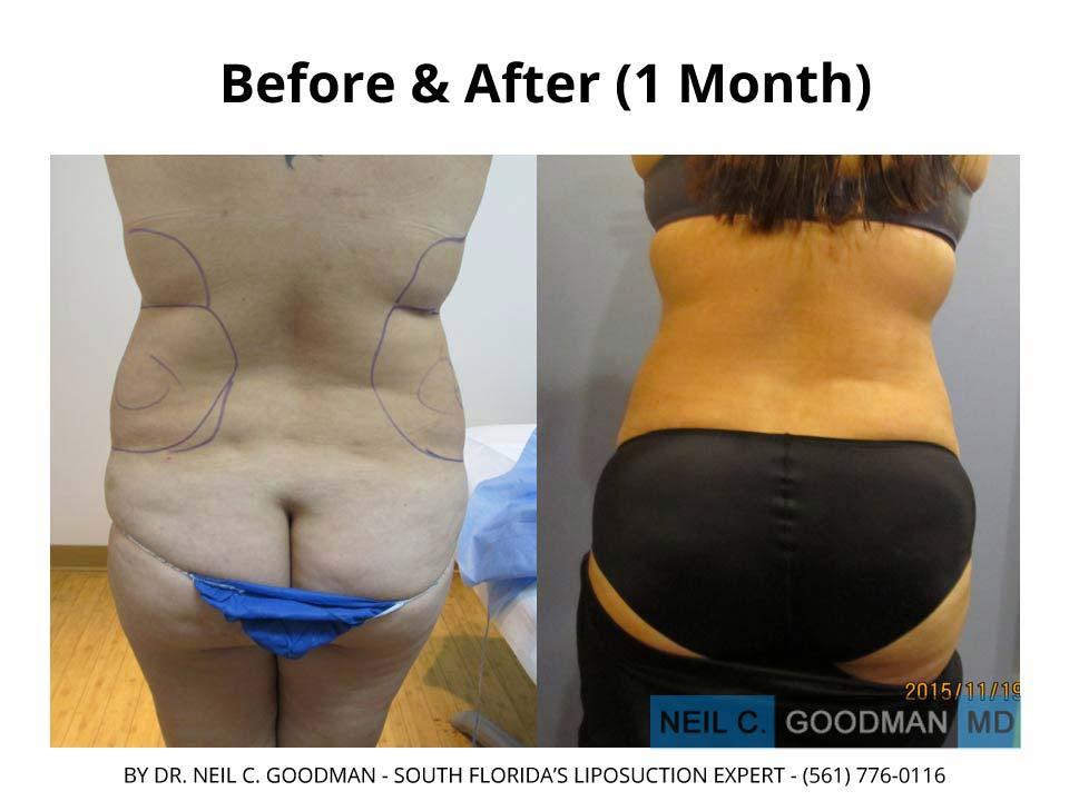 Large Volume Liposuction woman 1 Month