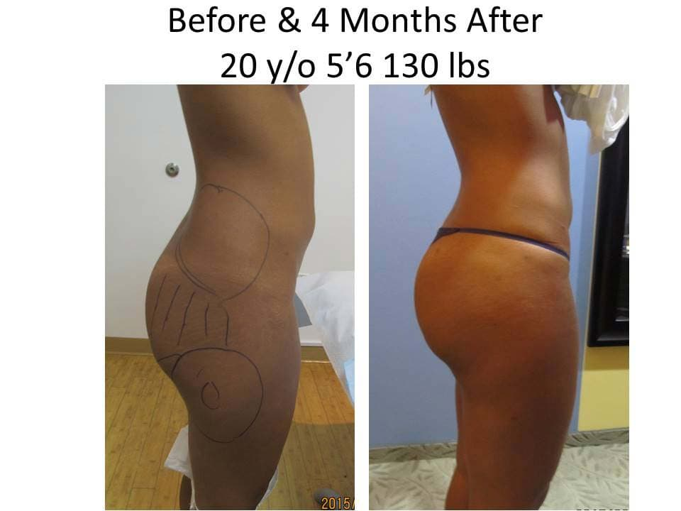 Brazilian Buttlift of 20 Y/O results