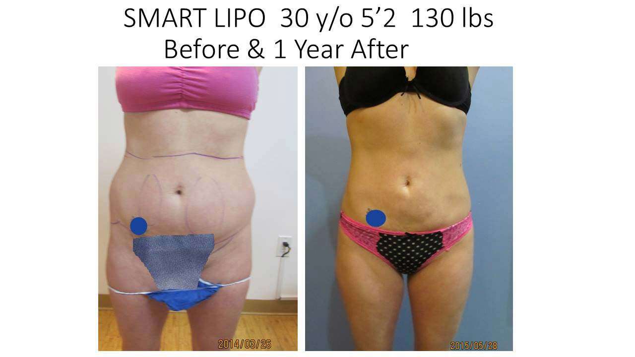 Smartlipo 30 Y/O 1 Year Results