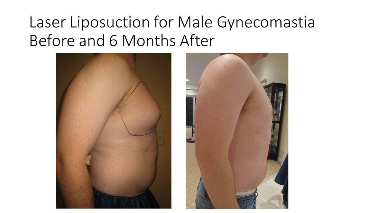 Laser Liposuction Male Gynecomastia photo