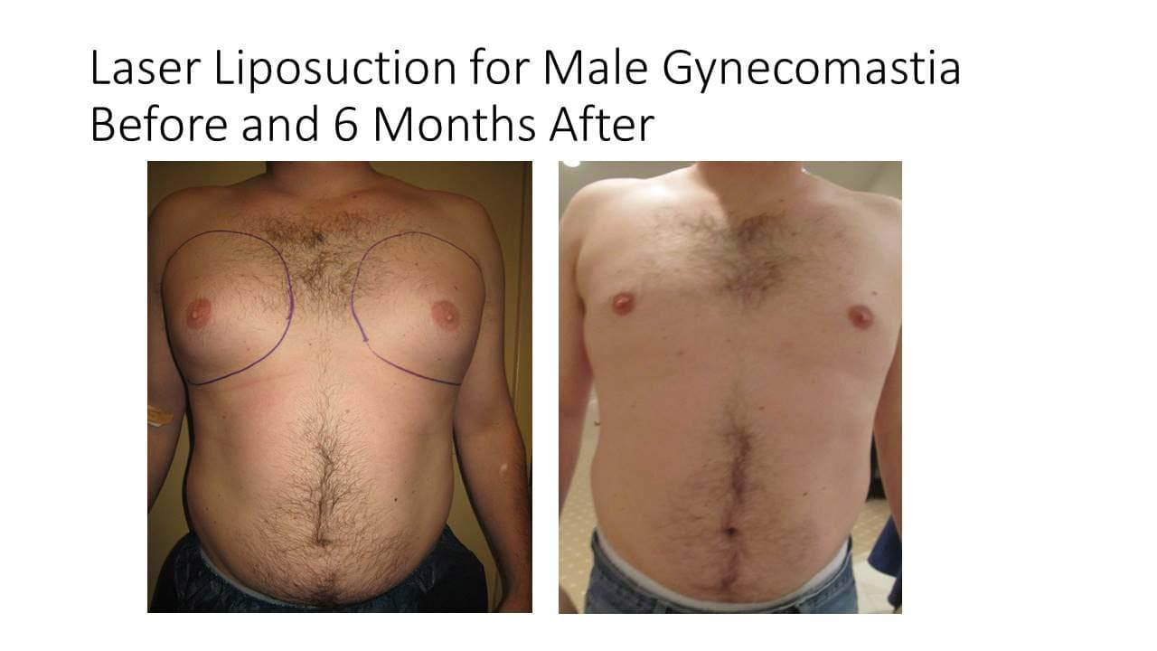 Laser Liposuction for Male Gynecomastia Results