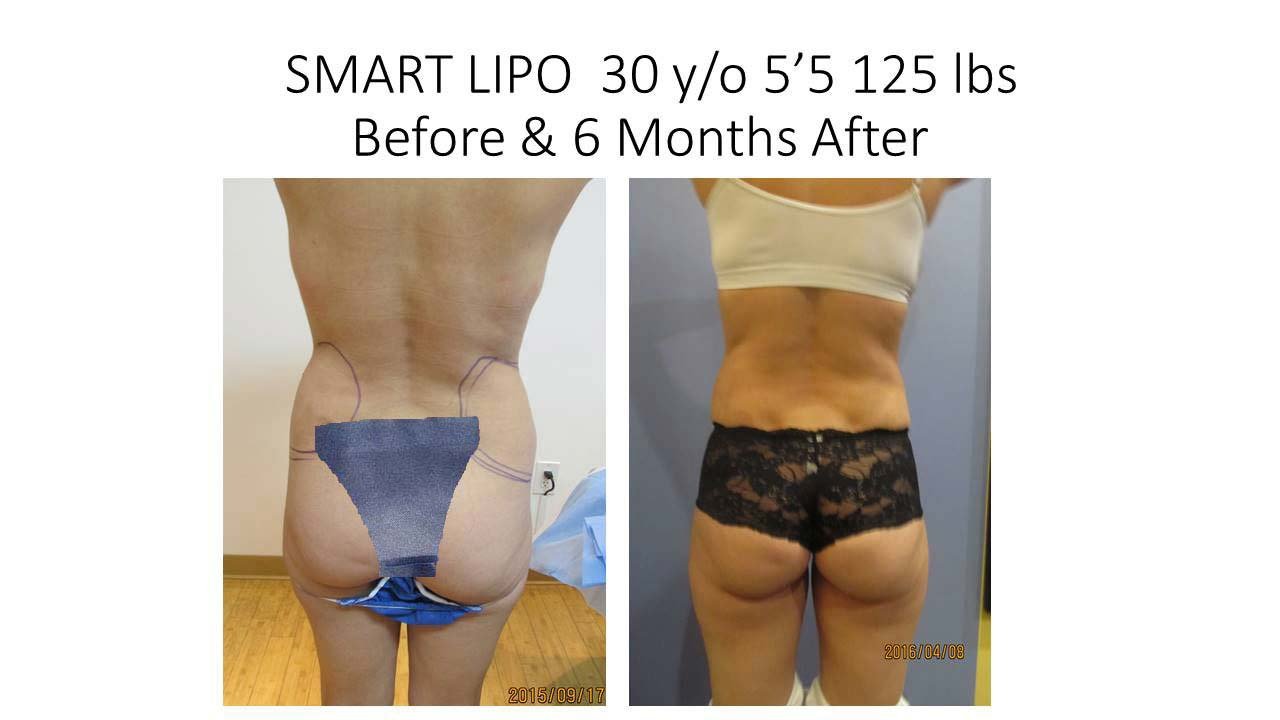 Smartlipo of 30 Y/O woman Results After 1 Year
