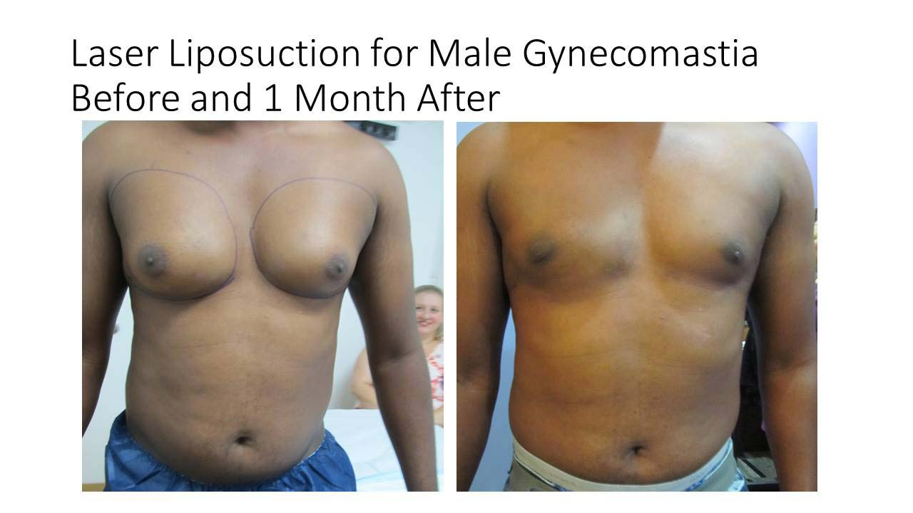 Laser Liposuction of Male Gynecomastia Results