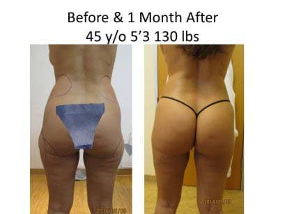 Brazilian Buttlift of 45 Y/O after 1 Month