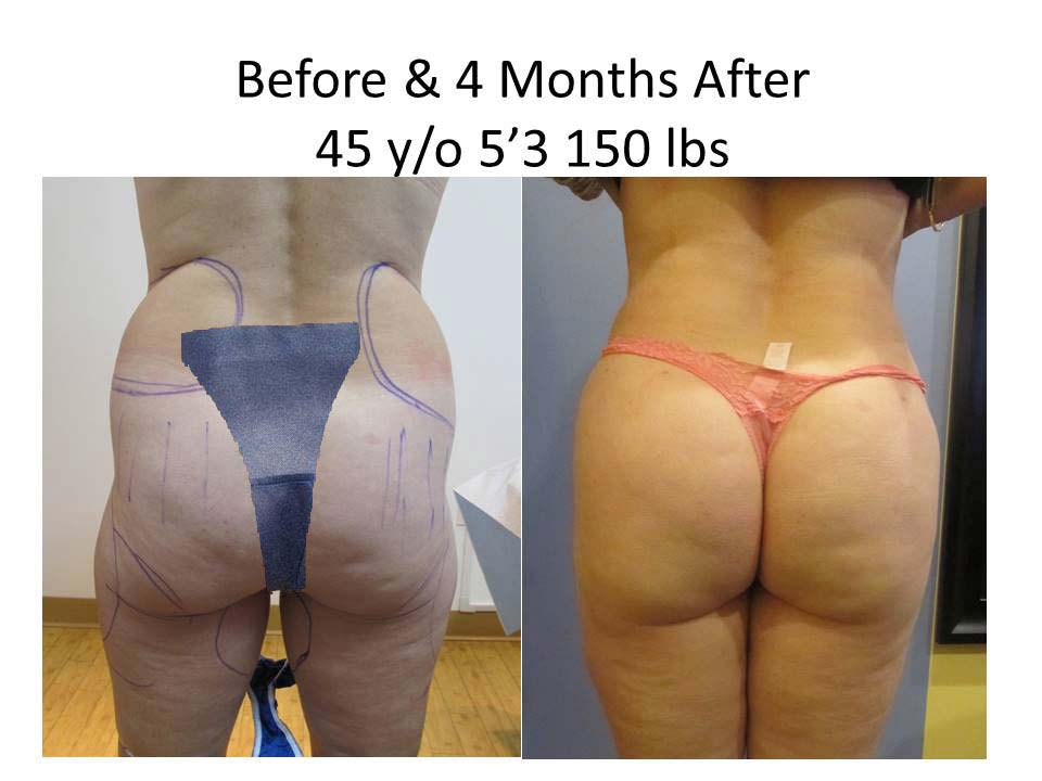 Brazilian Buttlift 45 Y/O after 4 month result photo