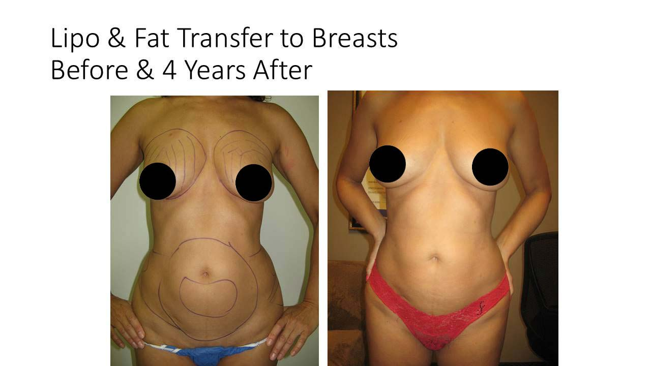 Liposuction breasts woman