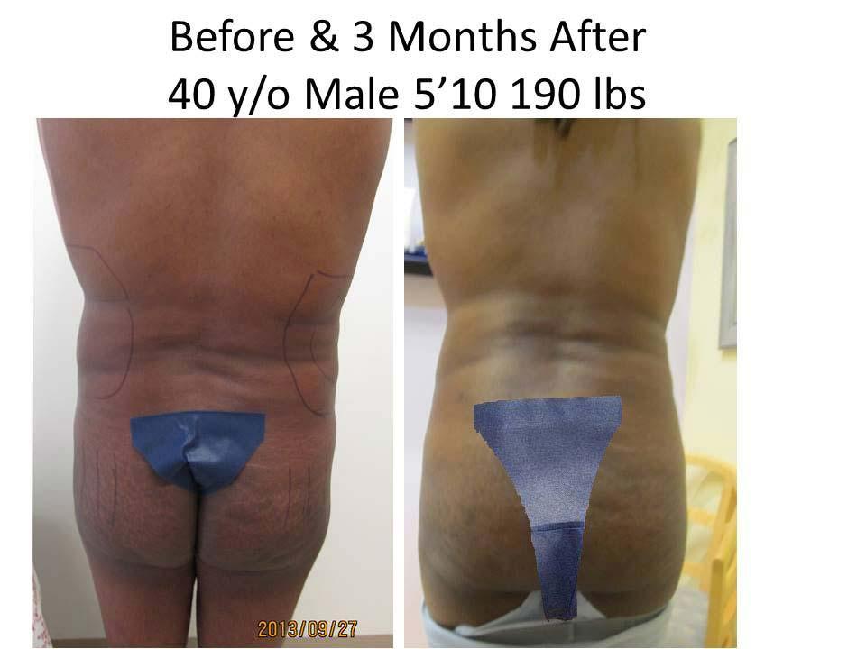 Brazilian Buttlift Male 40 Y/O 3 Months