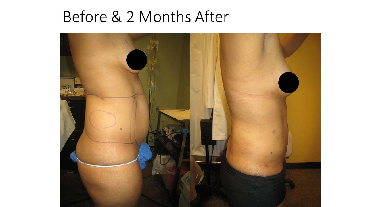 Liposuction Breast Result