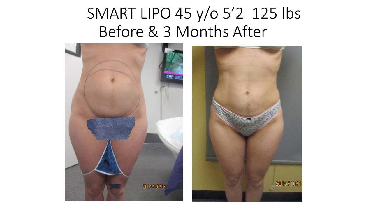 Smartlipo 45 Y/O 3 months