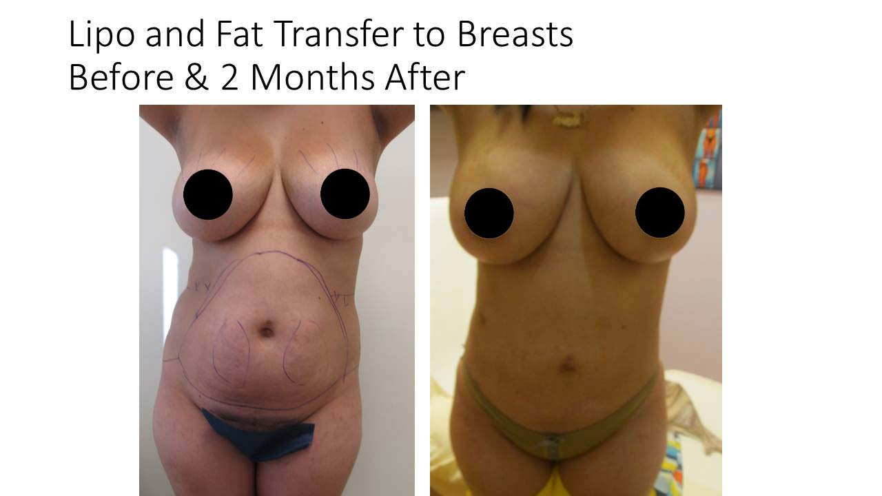 Lipo Fat Transfer breasts woman