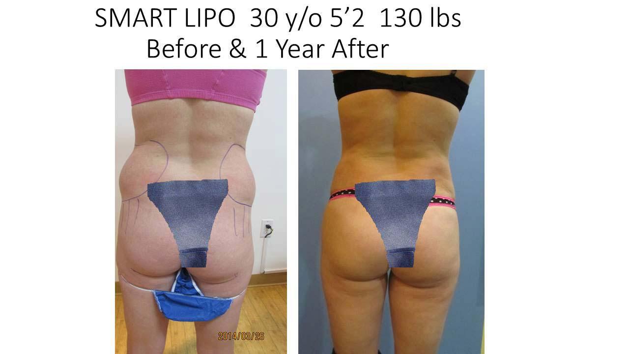 Smartlipo 30 Y/O 1 Year