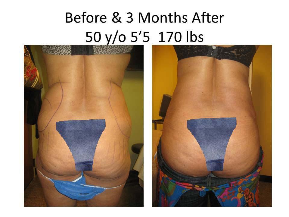 Liposuction Fat Transfer 50Y/O