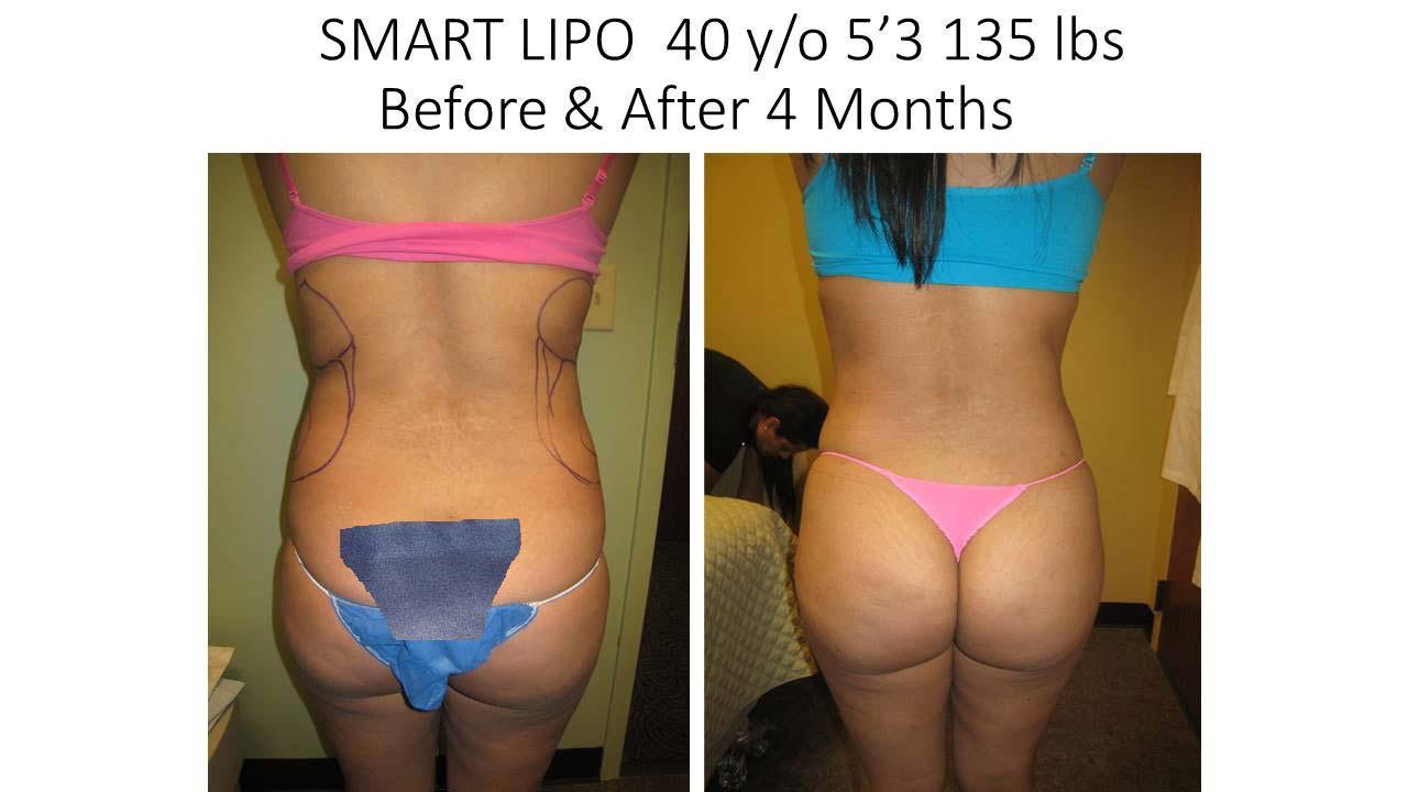 Smartlipo 40 Y/O 2 months