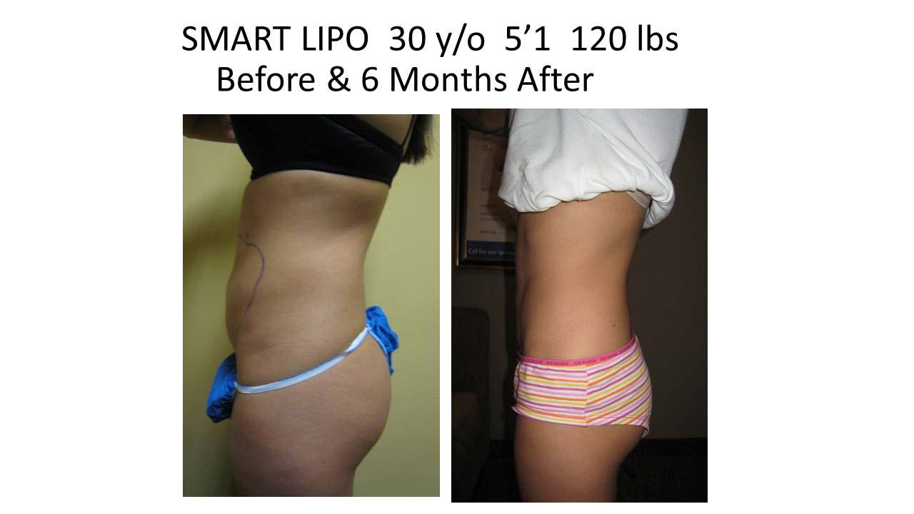 Smartlipo 30 Y/O 6 months