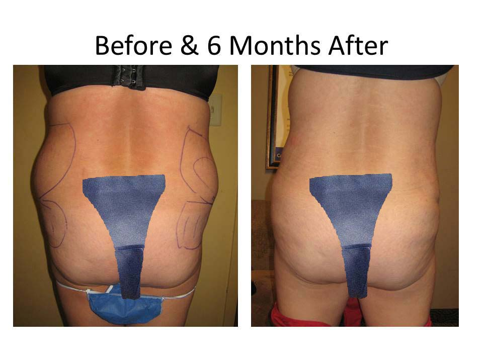 Brazilian Buttlift before and after Photo