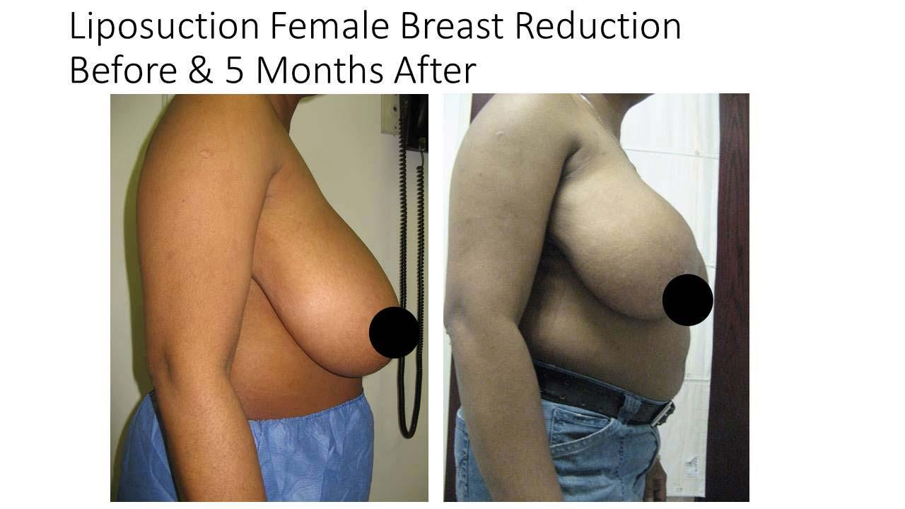 Lipo Fat Transfer breasts woman result