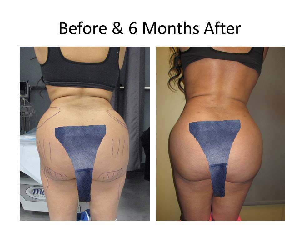 Brazilian Buttlift 6 Month