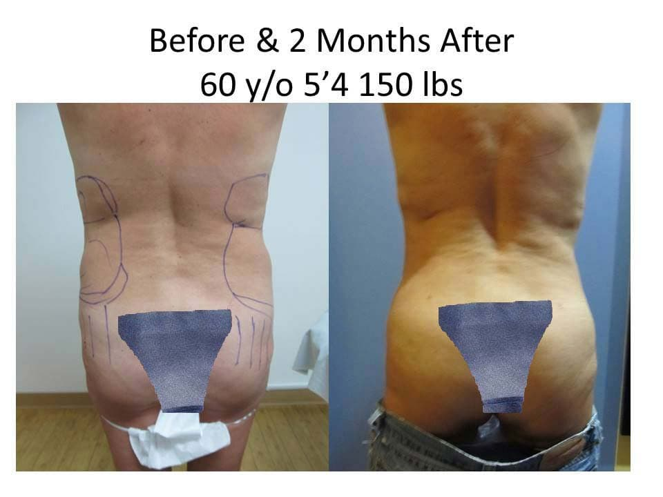 Brazilian Buttlift 60 Y/O 2 Months