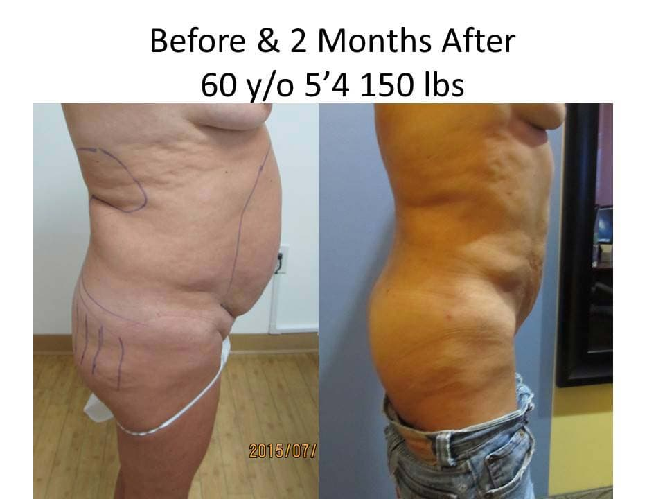Brazilian Buttlift 60 of Y/O after 2 Months