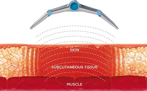 Vanquish Tissue Selectivity Diagram in St. Lucie