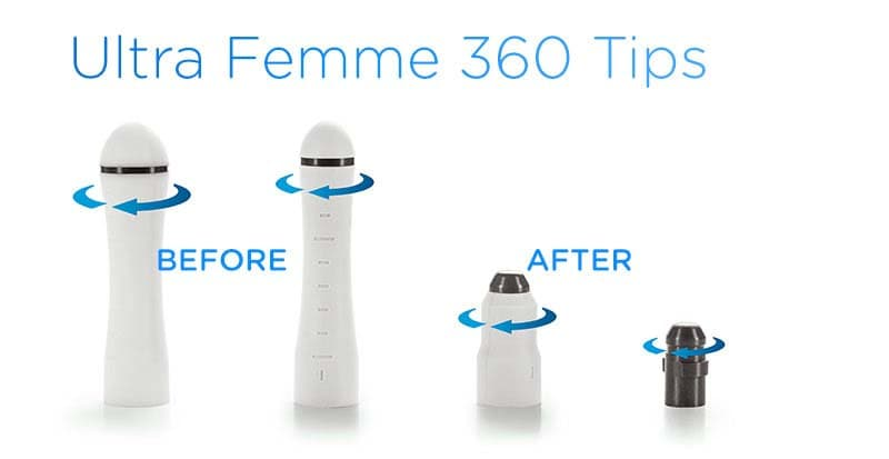 Ultra Femme 360 Treatment Tips image